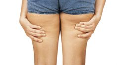How to #get_rid_of_cellulite fast and naturally is a question on many minds of women? If you are suffering from cellulite, you may consider using a proven slimming and #anti_cellulite_cream.