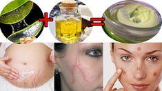 Gel maison pour se débarrasser des vergetures, des taches de vieillesse, de l'acné, des cicatrices - Mes Remèdes Naturels