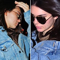En plena Semana de la Alta Costura en París a Kendall Jenner la atacó el acné