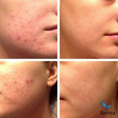 Acne and acne scars treatment at Revitta Cosmetic Clinic Cosmetic Clinic, Cosmetic Procedures, Before And After Acne, Hydra Facial, Facial Aesthetics, Massage Envy, Natural Acne Remedies, Acne Facial, Scar Treatment