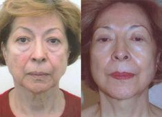 The Secrets For Appearing Younger Using Anti-Aging Facial Rejuvenation And Physical Face Tightening