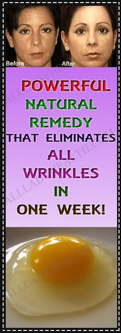 POWERFUL NATURAL REMEDY THAT ELIMINATES ALL WRINKLES IN ONE WEEK! #wrinkles #skin #care #beauty #remedies #natural #home #remedies
