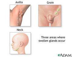 Swollen Thyroid Gland Natural Treatment