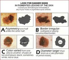 Skin Cancer - How to Tell Normal Moles From Cancerous Moles