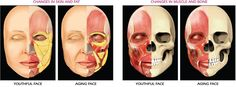 ANATOMY OF FACIAL AGING  Facial aging process begins with the surface and subsurface structural changes in multiple facial tissue layers, including skin, fat, muscle and bone. Facial tissue layers age interdependently, contributing to the overall facial appearance. Facial aging is due to changes in several types of tissue, including skin, fat, muscle, and bone.