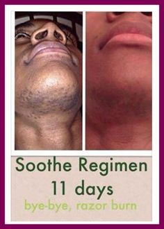 Rodan & Fields Before and after photos with the SOOTHE regimen after 11 days. https://lcappello.myrandf.com/Shop/Soothe Preferred Cust Get 10%OFF & #FreeShipping Ask Me How