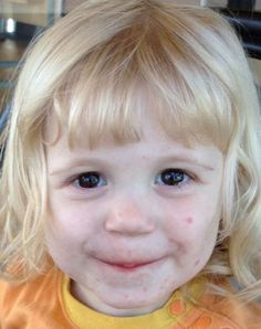 How I healed my toddler's dermatitis...naturally! BrownThumbMama.com