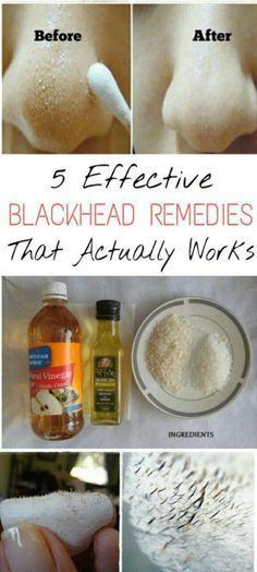 AMAZING 5 EFFECTIVE BLACKHEAD REMOVAL REMEDIES THAT ACTUALLY WORK - #Beauty #blackhead #remedies