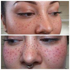 microblading freckles before and after - Sök på Google