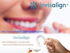 Ortodoncia invisible en las Palmas al mejor precio