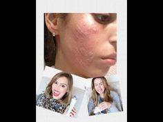 PMD - como destruir sua pele - YouTube