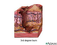 How to Identify Third Degree Burns Medical Students, Nursing Students, Med Surg Nursing, Study Cards, Skin Grafting, Skin Burns, Medical Anatomy, Emergency Medicine, Medical Field