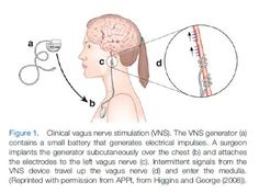 Vagus nerve stimulation had profound effects on fibromyalgia patients in one study