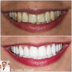 Emax Veneers by Dr. Haider Alfayadh, Cosmetic and Implantology Specialist  ايماكس فنيير  د.حيدر الفياض، اخصائي تجميل وتركيب اﻻسنان، عضو الأكاديمية اﻻكاديمية اﻻمريكية لتجميل اﻻسنان. اخصائي زراعة اﻻسنان (المانية). خبير ابتسامة هوليوود .للتواصل على الواتس اب 39795440.  #qatar #ksa #kuwait #uae #emirates #dubai #oman #lebanon #germany #jordan #usa #bahrain #bahrainclinic #bahraindental #dental #dentalclinic #specialists #dentist #smile #cosmetic #emax #veneer #implantologist…