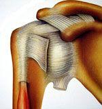 Les ruptures des tendons de la coiffe des rotateurs