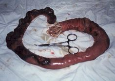 This shows the removed bowel of a person with a serious worm infestation. It shows the severe damage to the surface and structure of the bowel obviously being infected for a long period of time.