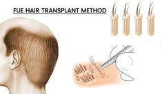 Dr Dutt Hair Transplant Center: 10 questions about hair transplant FUE Hair Transplant Cost, Hair Transplant Surgery, Celebrity Hairstyles, Cool Hairstyles, Cosmetic Clinic, Hair Clinic, Hair Specialist, Hair Restoration, Hair Loss Treatment