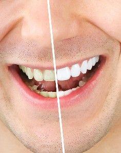 Evitar manchas en los dientes es posible