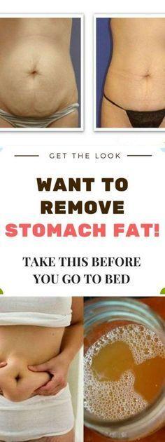 Remedy To Lose Your Stomach Fat – Medi Idea