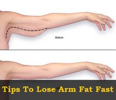 Tips To Lose Arm Fat Fast some good info but remember it takes time and you can't spot reduce body fat