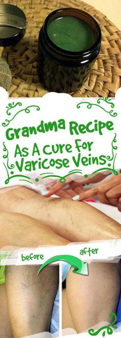 GRANDMA RECIPE AS A CURE FOR VARICOSE VEINS - #fitness #health #cure #varicose #veins #recipe #beauty #skincare