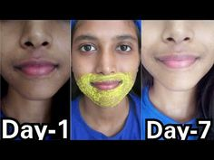 Remove Pigmentation, Dark patches Around Mouth Dark Skin Around Mouth, Darkness Around Mouth, Beauty Tips For Glowing Skin, Clear Skin Tips, Beauty Skin, Beauty Makeup, Dark Patches On Face, Lighten Skin, Hair And Beauty