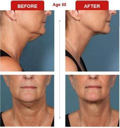 Kybella Before and After photos for Double Chin