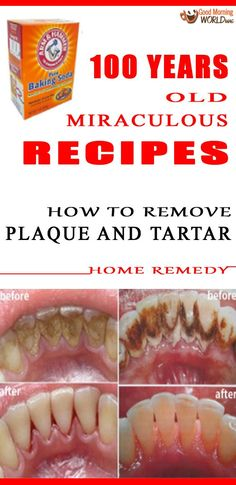 Due to a continual accumulation of minerals on the teeth and gum line a soft and sticky deposit will appear and bother your teeth. It is called plaque and it must be eliminated by brushing and flossing otherwise it may turn into tartar a more solid form o http://getfreecharcoaltoothpaste.tumblr.com