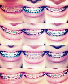 Best Color Braces For Teeth