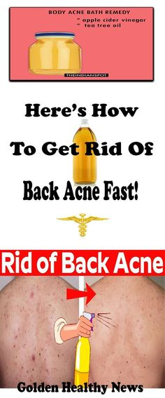 HERE'S HOW TO GET RID OF BACK ACNE FAST! ONLY 5 MINUTES!!! fast diet prayer