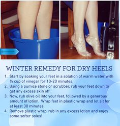 25 Luxury toenails Smell - Dry Heels Keep your feet soft and hydrated during the. 25 Luxury toenails Smell – Dry Heels Keep your feet soft and hydrated during the cold dry winter months Wit Dry Heel Remedies, Pedicure Soak, Pedicure At Home, Pedicure Ideas, Pedicure Nails, Dry Heels, Soft Heels, Smooth Feet, Skin Structure
