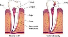 Dental Health in Kids