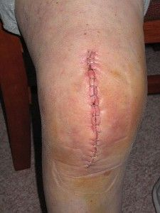 Facts About Knee Replacements