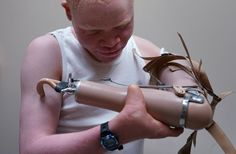 Attacked for body parts, Tanzanian albino children get new limbs in US. Four Tanzanian kids with albinism are visiting the US to get prosthetic limbs that will help them do everyday tasks most people take for granted. Uk Election, Albinism, Witch Doctor, Clowning Around, Awareness Campaign, Pictures Of The Week, Photojournalism, Body Parts, Washing Clothes