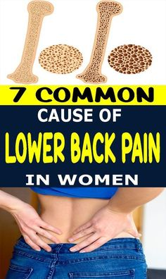 7 Common Causes Of Lower Back Pain In Women lifestyle lifestyle fitness lifestyle healthy habits lifestyle ideas lifestyle tips Acne Remedies, Health Remedies, Natural Remedies, Back Pain Remedies, Insomnia Remedies, Psoriasis Remedies, Cellulite Remedies, Arthritis Remedies, Hair Remedies