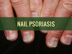 Nail psoriasis is not a condition to be ashamed of. Learn how to treat nail psoriasis with nail psoriasis treatment, both naturally and medically.