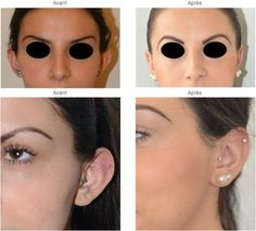 Chirurgie des oreilles avant et apres