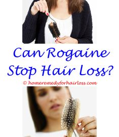 how to recover hair loss for men - vinegar for hair loss dandruff.nioxin conditioner for hair loss why does testosterone therapy cause hair loss hair loss from food 1483543507