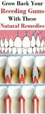 Grow Back Your Receding Gums With These Natural Remedies !