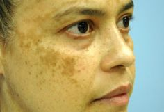 Three Natural Home Remedies For Melasma, Pigmentation And Age Spots