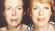 Facial Toning Exercises To Trim Excess Facial Skin And Shed Face Lines