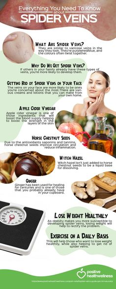 Natural Remedies For Varicose Veins A graphic on the treatments for spider veins. - If you're sick of unsightly spider veins, you don't need to go to your doctor for a special treatment. Try these four DIY tricks at home instead!