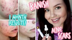 HOW TO GET RID OF ACNE SCARS FAST ♡ Banish Review