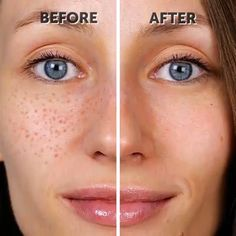 Exceptional beauty care information are offered on our web pages. Read more and you will not be sorry you did. #beautycare Beauty Tips For Glowing Skin, Health And Beauty Tips, Beauty Skin, Beauty Care, Diy Beauty, Beauty Hacks, Homemade Beauty, Beauty Makeup, Beauty Life Hacks Videos