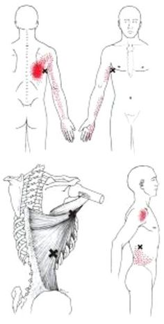 Latissimus Dorsi trigger point diagram, pain patterns and related medical symptoms. The myofascial pain pattern has pain locations that are displayed in red and associated trigger points shown as Xs. Trigger Point Massage, Trigger Point Therapy, Medical Symptoms, Referred Pain, Psoas Release, Muscle Knots, Latissimus Dorsi, Muscle Anatomy, Tension Headache