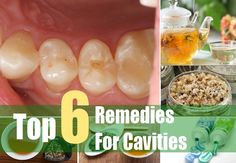 6 Herbal Remedies For Cavities Read HERE ---  http://www.livinggreenandfrugally.com/6-herbal-remedies-cavities/