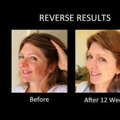 More awesome results with REVERSE!   My favorite regimen to start with!