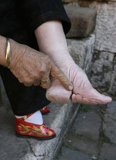 Chinese Foot Binding Results...