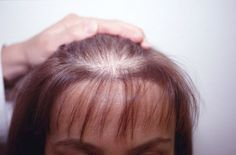 Read here about Hair Loss Treatment using essential oil blend to stimulate hair growth. #hairlosstreatment #HairLossTreatmentDIY
