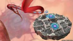 El implante esponja que atrapa las células del cancer dentro de tu cuerpo | BBC Mundo